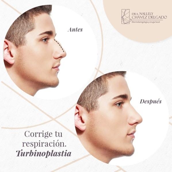 Turbinoplastía