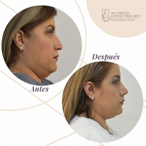 Antes y después de la liposucción de papada