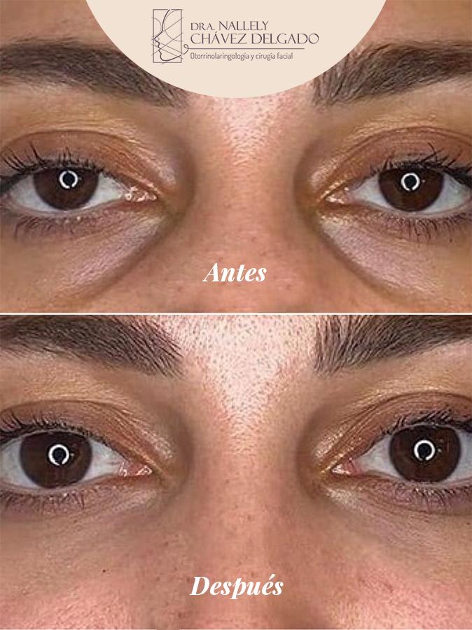 operación de bolsas de ojos
